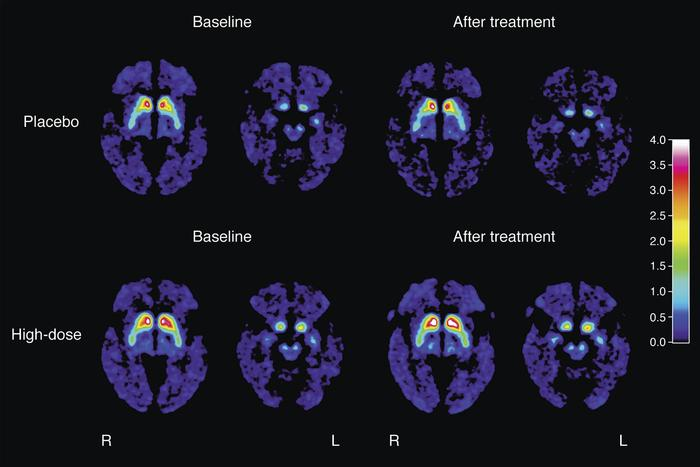PET scans show dopamine signal activity before and after treatment with PDGF - white areas mean higher activity. Source: Lund University