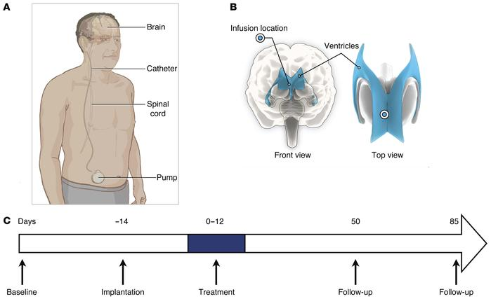 Position of the catheter to introduce PDGF and timing of the study